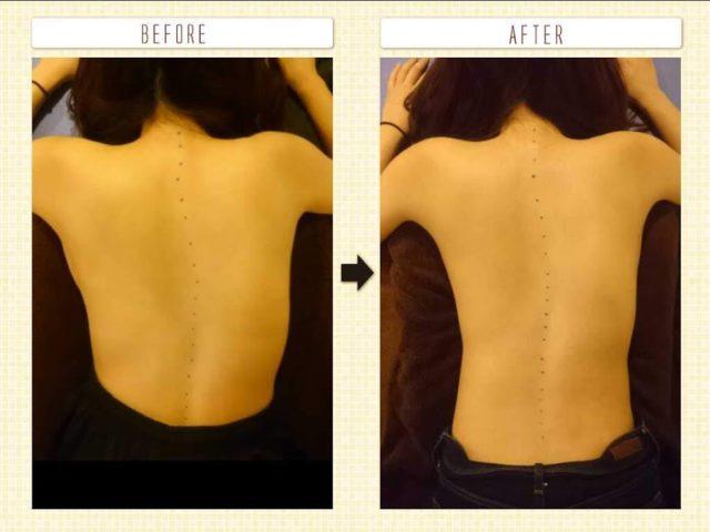 側弯症 姿勢改善 背骨