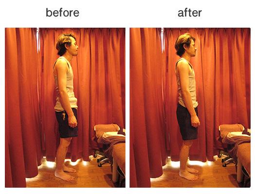 猫背 姿勢改善 背骨